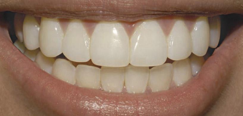 Coroană dentară din zirconiu