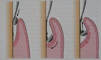 Chiuretaj parodontal