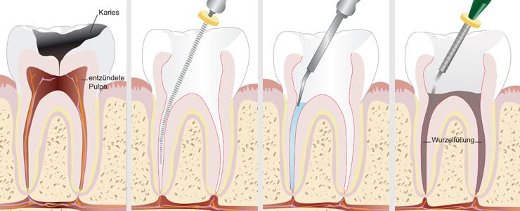 Endodonţie
