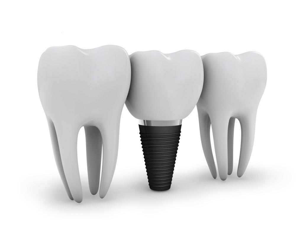 Implant Premium SUA