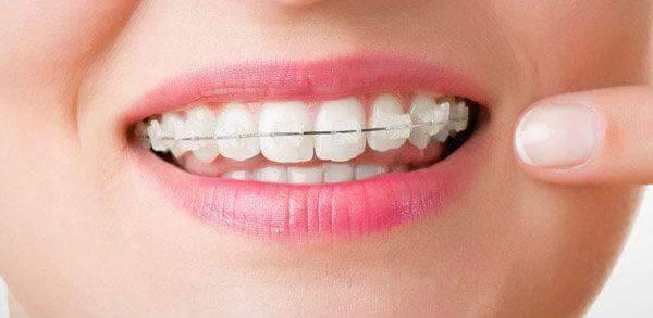 Ortodonţie – aparat Safir