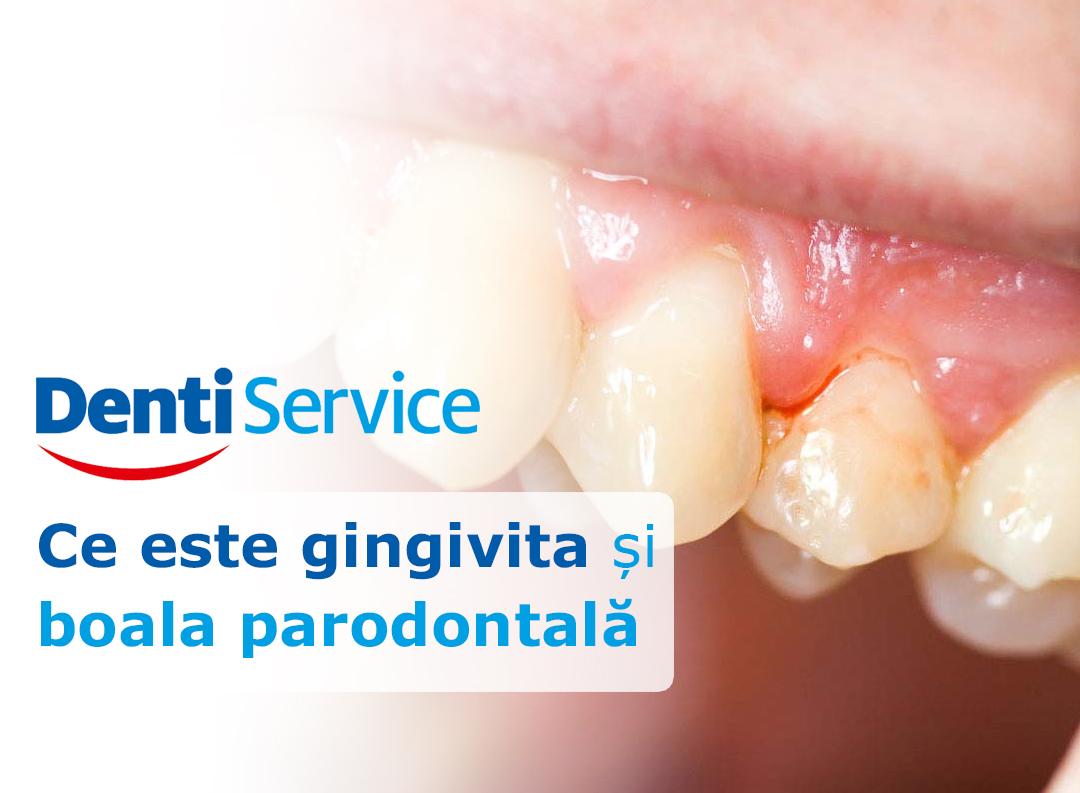 Ce este gingivita și boala parodontală
