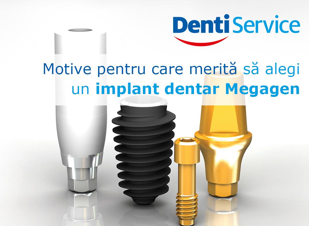 Implant dentar Megagen – De ce să-l alegi?