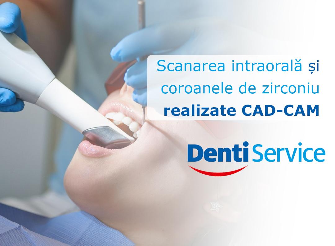 Scanarea intraorală și coroanele de zirconiu realizate CAD-CAM